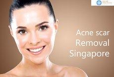 Acne scar Removal Singapore